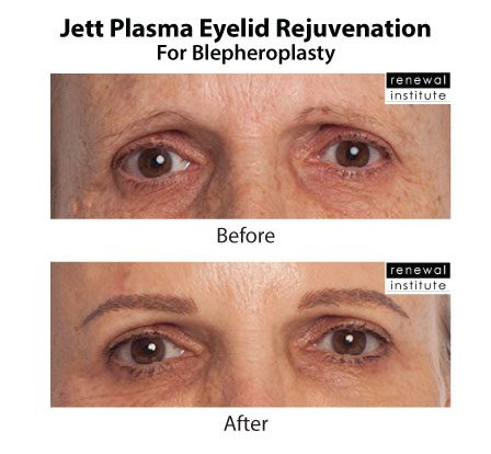 Jett Plasma Eyelid Before and after
