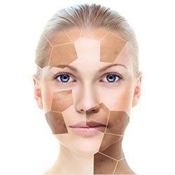 Pigmentation vs. Melasma