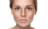 Pigmentation: Know the causes and the cure