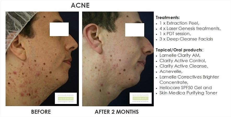 article peels for acne