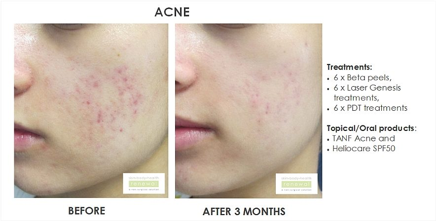 peels for acne