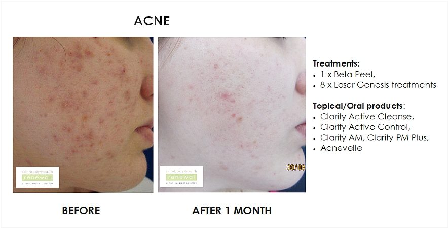 article acne peels