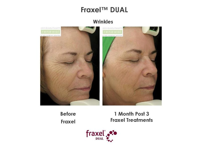 fraxel dual before and after