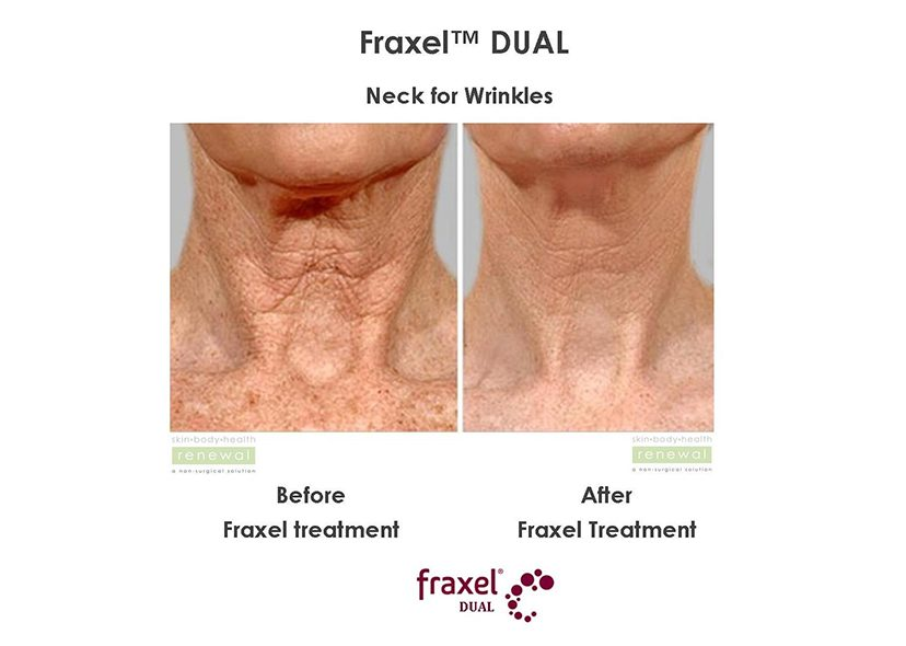 fraxel dual before and after neck