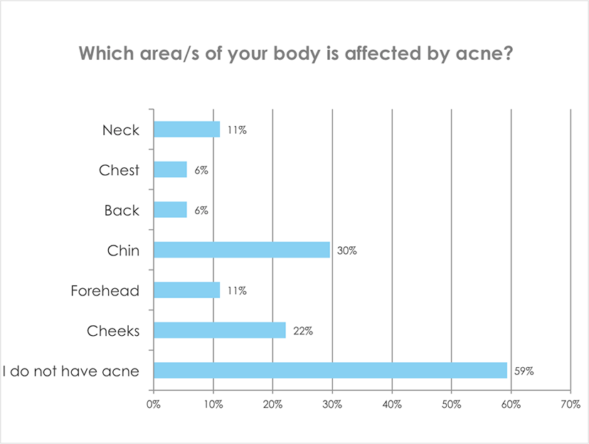 Which areas on your body is affected by acne?